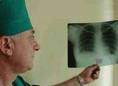 Туберкулез симптомы и лечение, туберкулез у детей