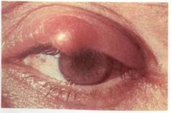 Фото симптомы ячменя на верхнем веке глаза