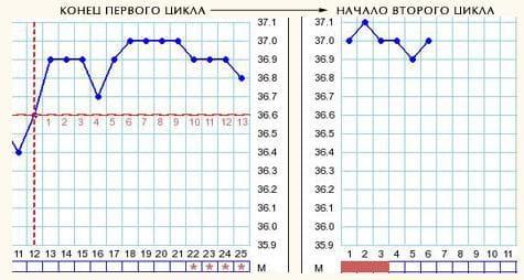 Расшифровка графика базальной температуры (БТ): Эндометрит