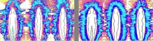 ГВР-грамма до и после лечения