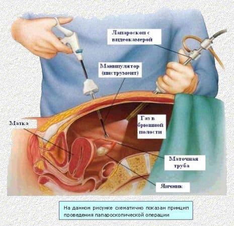 Вирусная инфекция гепатита клиника