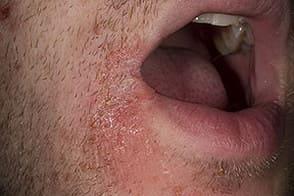 стрептодермия на губах фото