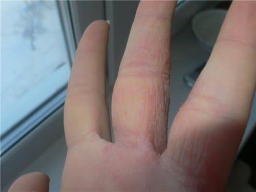Симптомы дерматита от ношения кольца