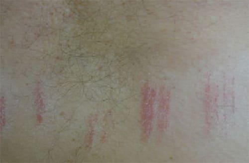 Симптомы контактного дерматита от трения одежды