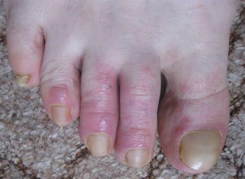 Симптомы дерматита при озноблении
