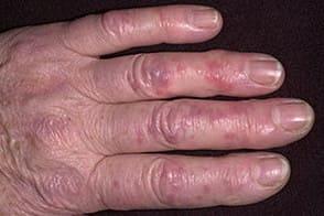 Симптомы обморожения 2 степени