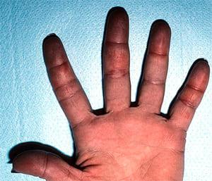 Симптомы обморожения 4 степени