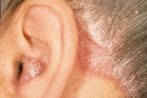 Фото симптомы псориаза: псориатическая корона