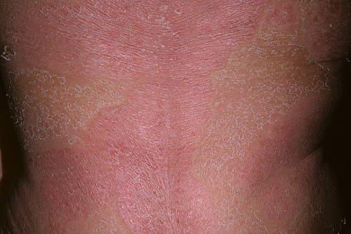 Фото: симптомы псориатической эритродермии