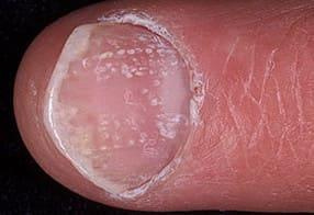 Фото: псориатический ноготь