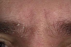 На фото симптомы себорейного дерматита лица