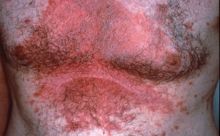 На фото симптомы себорейного дерматита тела