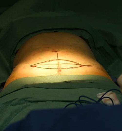 Фото при проведении липосакции с абдоминопластикой