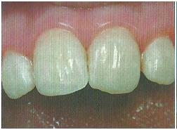 Пломбирование зубов кариозных полостей и корневых каналов