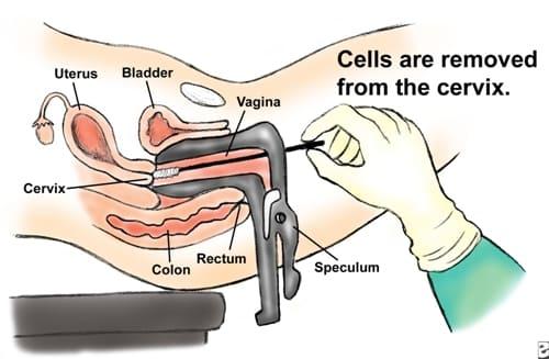 предметы в вагине и в матке