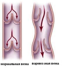 Отёки на ногах (опухают ноги, отекают ноги) - Причины, симптомы и лечение