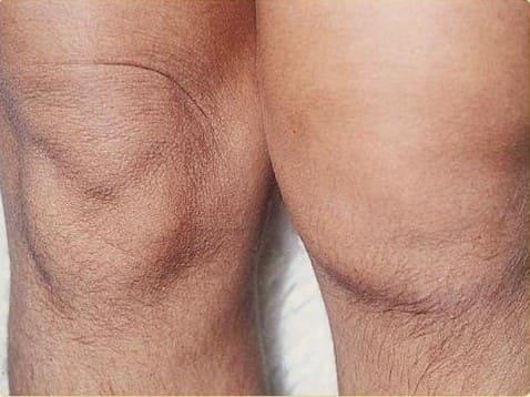 Оперативное лечение повреждения передних крестообразных связок коленного сустава