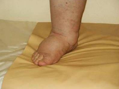 Журнал о здоровье народные советы болят суставы