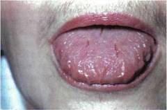 Налёт на языке при хроническом гастрите