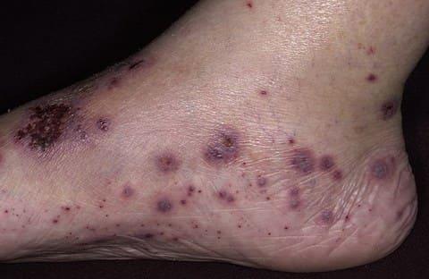 Лечение варикоза (варикозного расширения вен ) с