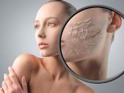 Почему сухая кожа