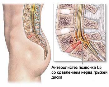Лечим позвоночник остеохондроз и ревматизм