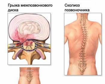 Каланхоэ при лечении межпозвонковой грыжи